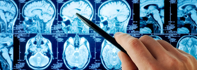 brain-panel